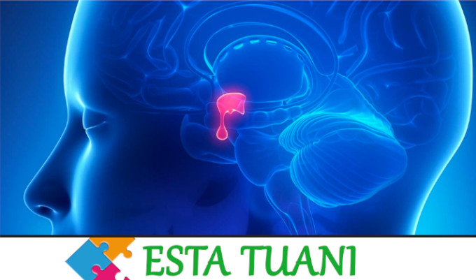 Pituitary tumor, tumor de hipofis